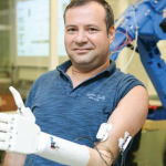 Turkey's first prosthetic arm was developed at Koç University.